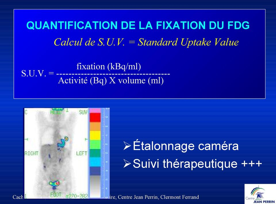 lue fixation (kbq/ml) S.U.V.