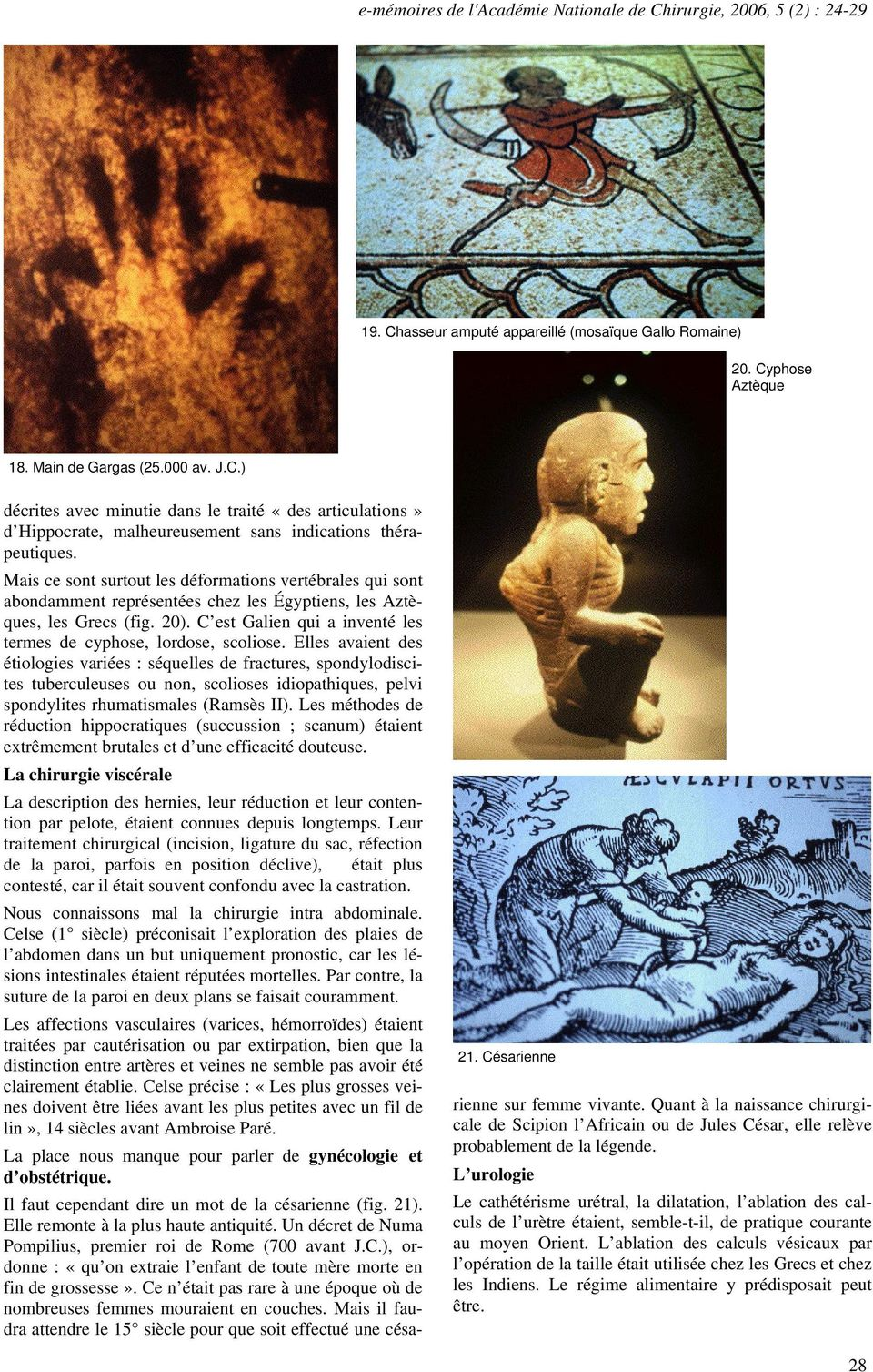 La chirurgie des civilisations disparues - PDF