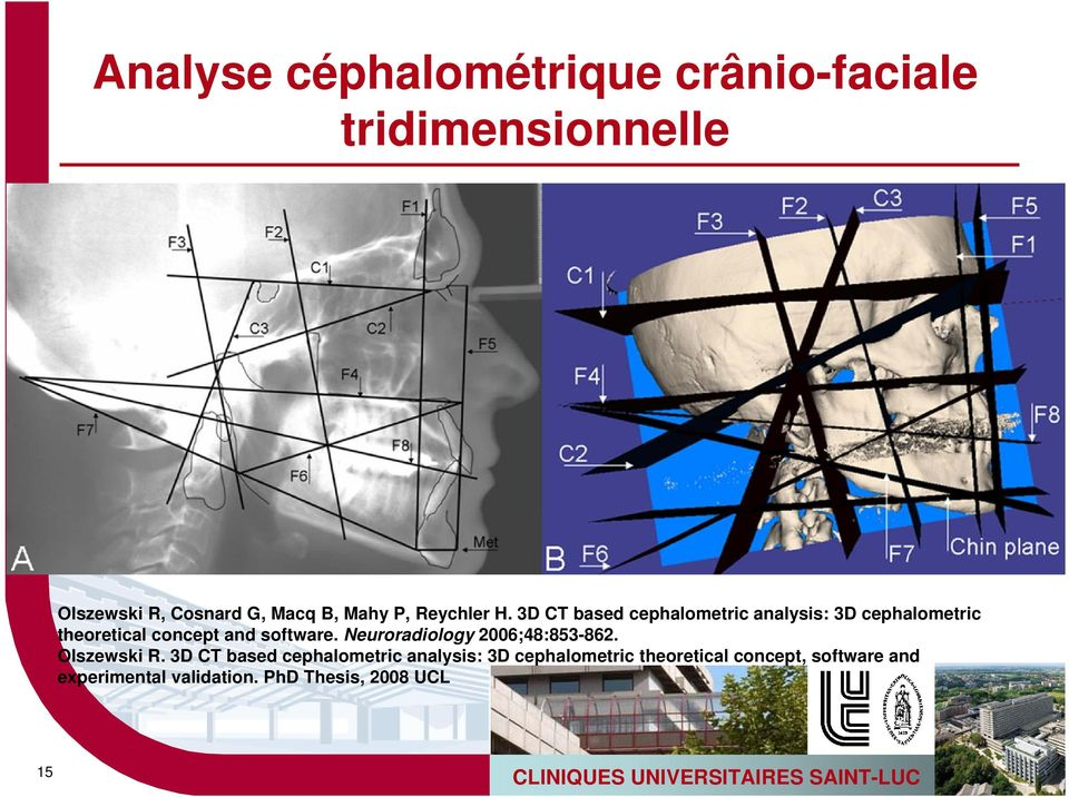 3D CT based cephalometric analysis: 3D cephalometric theoretical concept and software.