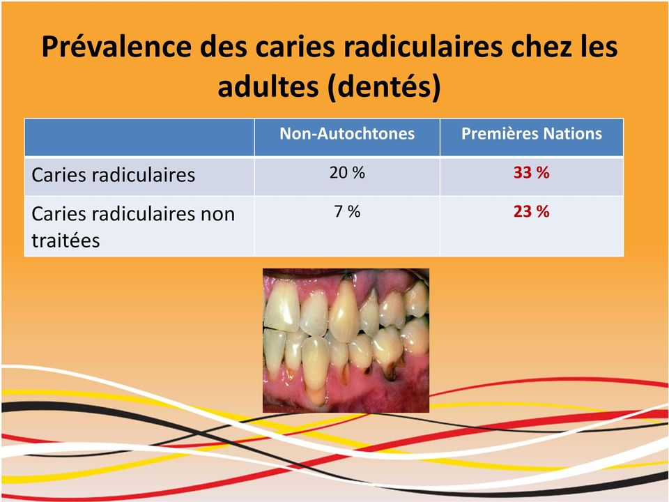 Premières Nations Caries radiculaires 20