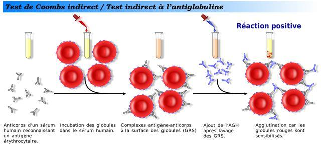 Anticorps immuns 10 RAI: recherche d anticorps