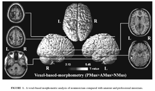 have an exaggerated loss of grey matter during adolescence Sample Question using Vanishing Cues 2)Variabilité. 3)Répartition de l apprentissage.