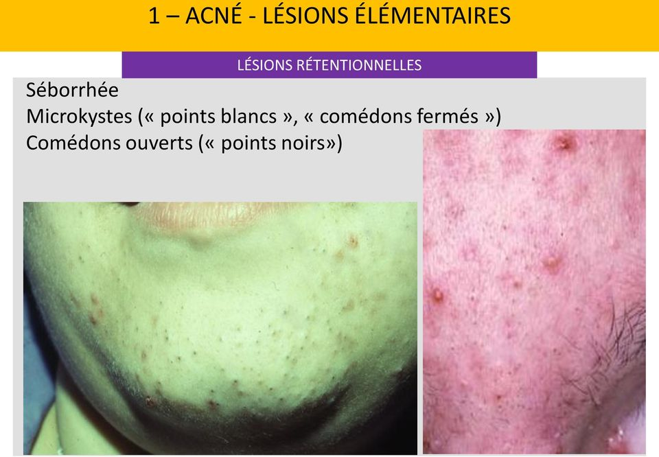 Microkystes («points blancs»,