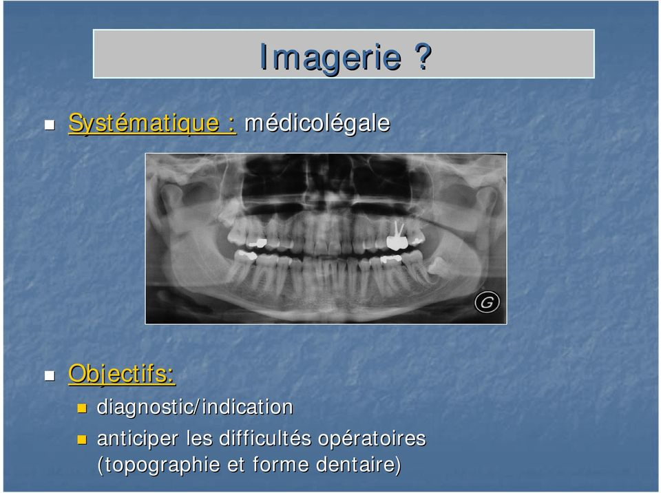Objectifs: diagnostic/indication